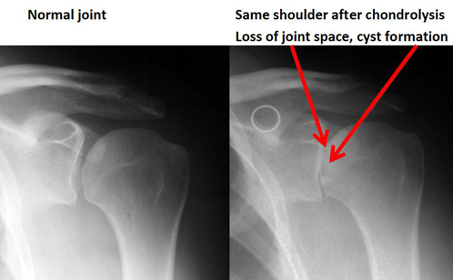 Treatment of shoulder chondrolysis