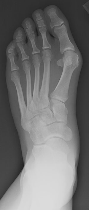 Figure 1 - X-ray view of foot with bunion (hallux valgus)