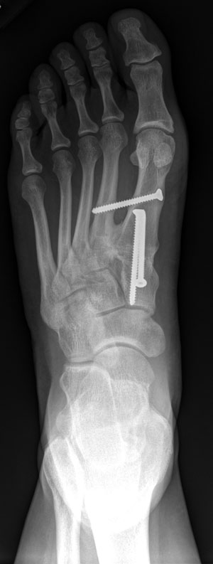 Figure 2 - X-ray view of foot after surgery for bunion (hallux valgus)