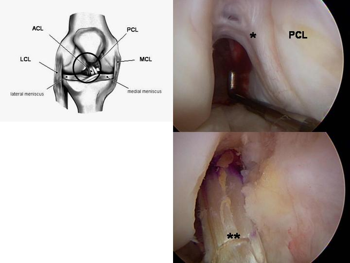 Figure 2 - Clockwise from upper left:  Diagram of the right knee.  Upper right:  Arthroscopic view of a chronically ACL-deficient knee.  Lower right:  Arthroscopic view of the ACL reconstructed with a hamstring autograft.