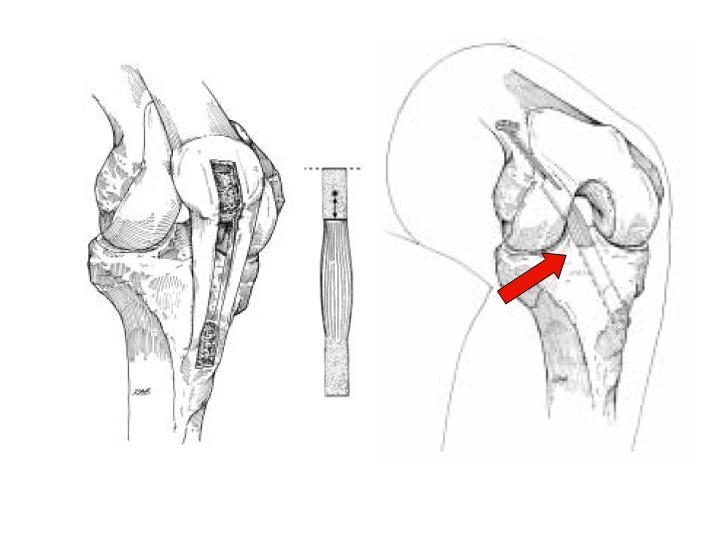 Arthroscopic Acl Uw Orthopaedics And Sports Medicine Seattle