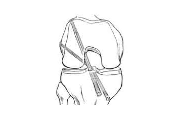 arthroscopic acl
