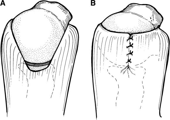 The margin convergence technique for rotator cuff repair.  Views from above the shoulder before (A) and after (B) margin convergence.