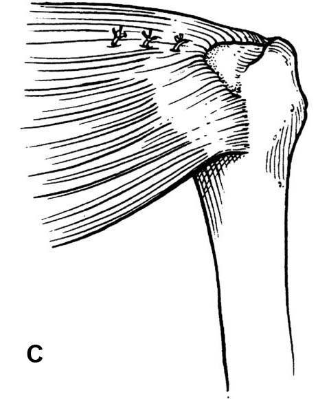 View from behind shoulder, showing the cuff after side-to-side repair before fixation to bone.  (Redrawn from Burkhart SS.  Arthroscopic treatment of massive rotator cuff tears.  Clin Orthop, 390:107-118.)