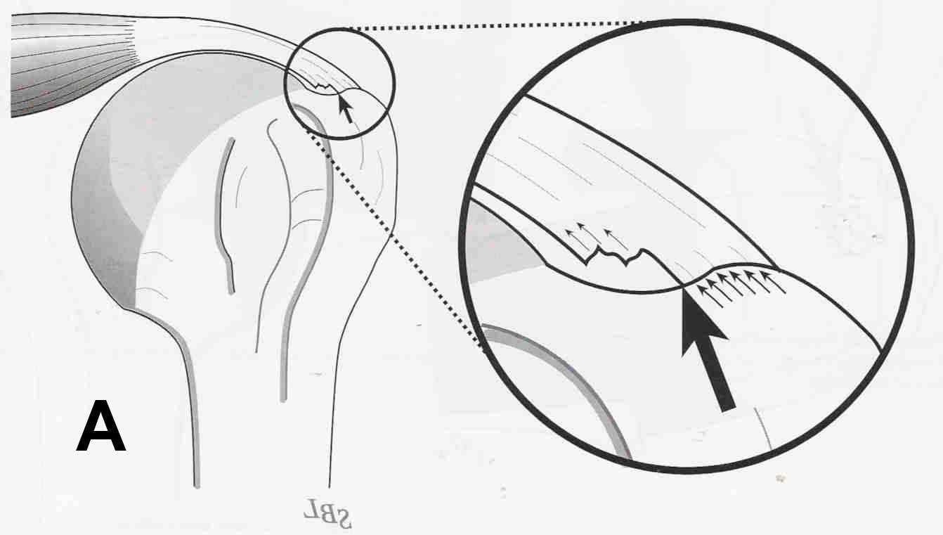 Figure 5a - Diagramatic (A) and arthroscopic (B) views of a partial thickness rotator cuff tear.  (A)  Rotator cuff tears usually begin as fraying of the deep fibers of the cuff as they insert at the bone of the humeral head (arrow).