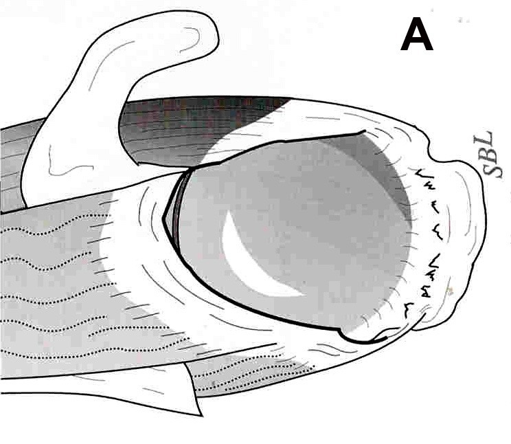 Figure 7a.  Diagramatic (A) and arthroscopic (B) views of a massive,