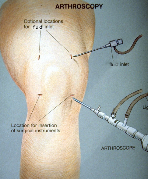 Meniscectomy Uw Orthopaedics And Sports Medicine Seattle
