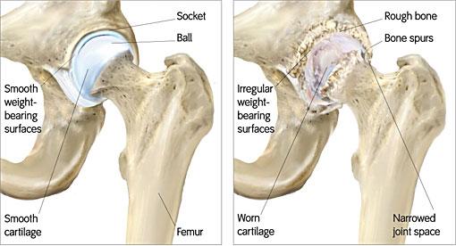 Bone-Sparing Total Hip Resurfacing Arthroplasty Surgery