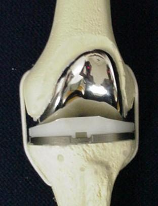 Knee Arthritis Uw Orthopaedics And Sports Medicine Seattle