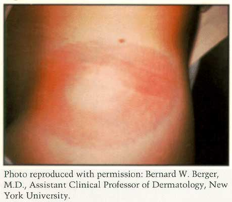 Figure 3 - Rash with Lyme disease may look like a red ring with a clear center