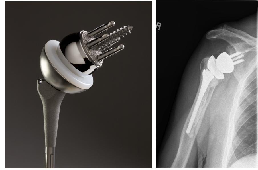 Reverse Total Shoulder Or Delta Shoulder For Shoulder Arthritis  bi