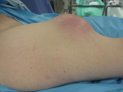 Soft Tissue Masses | UW Orthopaedics and Sports Medicine, Seattle
