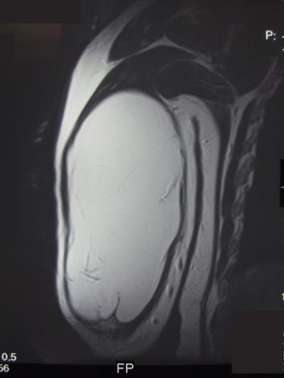 Soft Tissue Masses | UW Orthopaedics and Sports Medicine