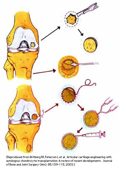 Micro Fractures for Athletes | UW Orthopaedics and Sports