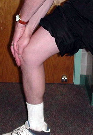 3 pain behind the kneecap from arthritis may occur along with arthritis elsewhere
