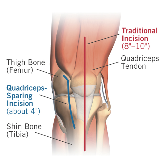 Figure 1 - The incision used for minimally-invasive quadriceps-sparing total knee replacement is much smaller than the one used f
