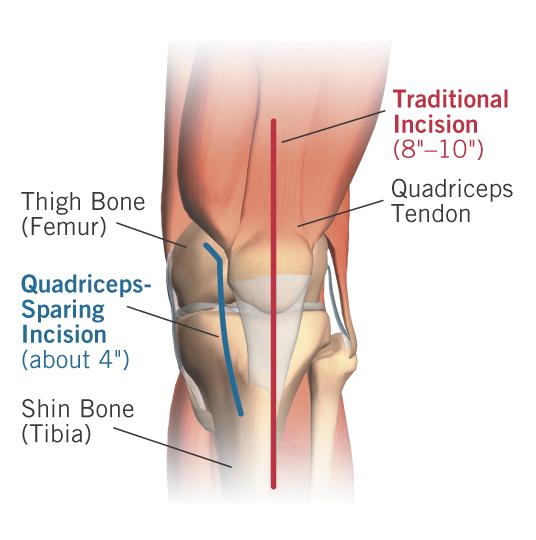 Osteoarthritis Of The Knee Uw Orthopaedics And Sports Medicine