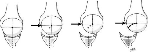Figure 2 - Normally the humeral head must climb out of the depth of the glenoid to translate across its face
