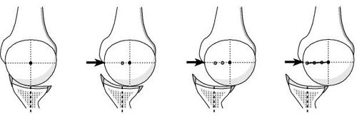Figure 3 - When the posterior aspect of the socket is flat  there is minimal resistance to posterior translation of the humeral head across the glenoid