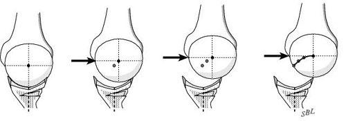 Figure 4 - The posterior glenoid osteoplasty restores the posterior glenoid concavity and the posterior glenoidogram