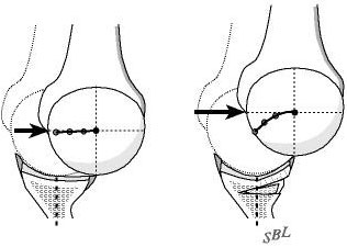 Figure 5 - The change in glenoid shape and glenoidogram from before to after the surgery is dramatic