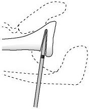 Figure 17 - The depth of the osteotome is controlled by paying attention to the sterile tape mark