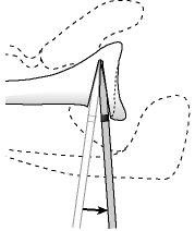 Figure 19 - A posterior inferior opening wedge osteotomy is created one centimeter medial to the glenoid lip in the same as the face of the glenoid articular surface. The depth of the osteotome is controlled by paying attention to the sterile tape mark. This osteotomy is opened with successive levering steps to ?bend? the bone  rather than breaking. The glenoid surface is observed as the osteotomy is deepened to prevent penetration of the joint surface.