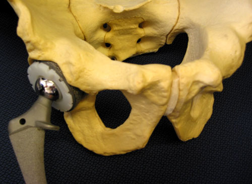 Figure 2 - Typical hip replacement components in their position relative to the hip and pelvis.