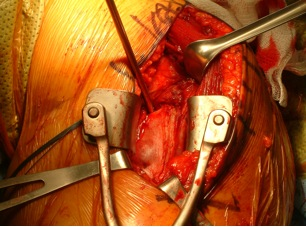 Figure 3 Visualization of superior portion of latissimus dorsi tendon