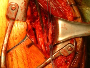 Figure 5 Approximation of latissimus dorsi/teres major tendon with pectoralis major tendon stump