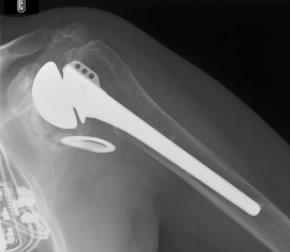 Fig. 1 Pre-operative x-rays