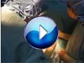 Arthritis videos