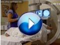 Spine videos
