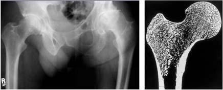 bone collagen
