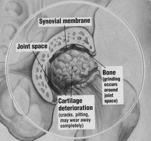 Figure 3 Hip Arthritis Arthritic Hip Carilage