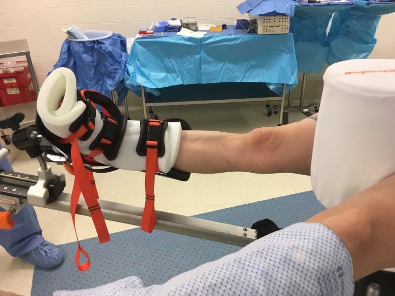 Hip Arthrsocopy - Traction