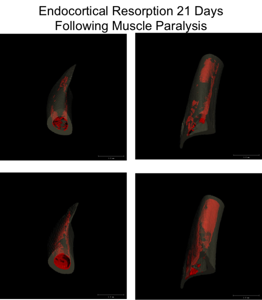 Endocortical Expansion in the tibia of mice following transient muscle paralysis