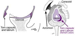 Bankart Lesion Fig 11 - Traumatic anterior instability