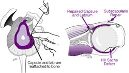 Bankart Lesion Fig 14 - Anatomical repair for ligaments and labrum