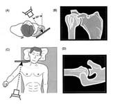 Bankart Lesion Fig 2 - Shoulder dislocation. AP and Axillary x-ray views