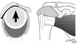 Reverse Total Shoulder