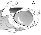 Rotator Cuff Tear. Diagramatic view of massive rotator cuff tear.