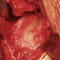 Figure 2 - This is the glenoid socket of an arthritic shoulder