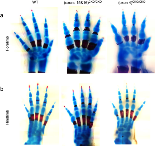Regulation of Interphalangeal Joint Development