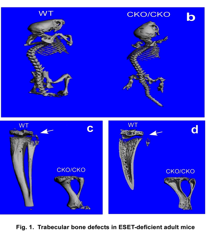 Development of trabecular bones